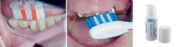 Implantatreinigung mit der Zahnbürste