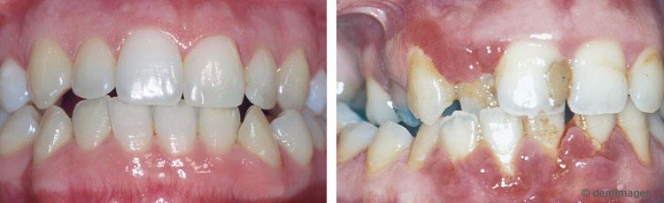 Linkes Foto: Gesundes Zahnfleisch ohne Entzündungen. Rechtes Foto: Schwere Schwangerschaftsgingivitis. Das Zahnfleiscvh ist geschwollen und stark entzündet. Die Schwangerschaftsgingivitis bildete sich erst in der zweiten Hälfte der Schwangerschaft.