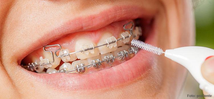 Zahnspange und Mundhygiene