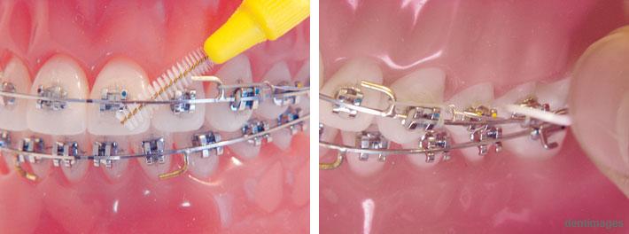 Die Bereiche unterhalb des Bogens werden mit einem Zahnzwischenraumbürstchen gereinigt (linkes Foto). Die Reinigung der Zahnzwischenräume ist bei einer festsitzenden Spange durch das Einfädeln der Zahnseide nur schwer möglich (rechtes Foto).