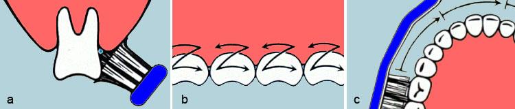 a) Halten Sie die Zahnbürste in einem schrägen Winkel von ca. 45 Grad halb auf das Zahnfleisch, halb auf die Zähne. Die Borsten ragen jetzt in die Zahnzwischenräume und in die Furche zwischen Zähnen und Zahnfleisch.So werden die Zähne optimal gesäubert und es wird gleichzeitig das Zahnfleisch massiert. b) Putzen Sie jetzt in kurzen, schnellen Bewegungen hin und her - wie auf der Stelle.So wird der bakterielle Zahnbelag - die Hauptursache für Karies und Zahnfleischentzündungen - gründlich entfernt. c)Rücken Sie dann immer jeweils zwei Zähne weiter - aber bleiben Sie im Putzrhythmus.Je kleiner die Putzfläche, desto besser die Reinigung der Zahnzwischenräume.