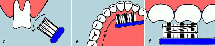 d) Wischen Sie zwischendurch den losgerüttelten Zahnbelag vom Zahnfleisch weg zur Zahnkrone. Dadurch wird der Zahnfleischsaum auch von kleinsten bakteriellen Partikeln befreit. e) Außen fertig? Dann widmen Sie sich mit der gleichen Sorgfalt den Zahninnenflächen. Die Plaque an den Zahnrückseiten ist besonders kritisch - man sieht sie nämlich nicht. f) Ganz fertig? Dann drücken Sie zum Schluss die Zahnbürste auf die Kauflächen und putzen wieder in kurzen Bewegungen hin und her - immer zwei Zähne weiter. Die Kauflächen sind besonders gefährdet. Mund ausspülen. Fertig.