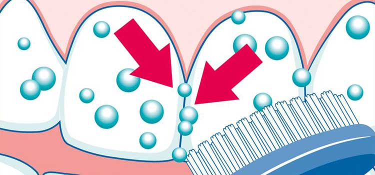 Zahnspangen: Gründliche Reinigung mit Pearls & Dents und seinen Putzkügelchen.