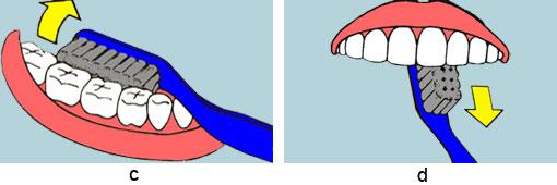 """c) """"I"""" = Innenflächen putzen: Die Zahninnenflächen werden mit kleinen Kreisen oder mit Drehbewegungen von """"rot nach weiß"""" gereinigt. d) """"I"""" im Bereich der Schneidezähne: Die Zahninnenflächen der Schneidezähne werden mit vertikalen """"Auswischbewegungen"""" von """"rot nach weiß"""" gereinigt."""