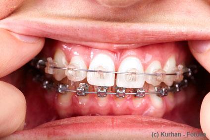 Gute Milchzahnpflege erspart später oft die Zahnspange