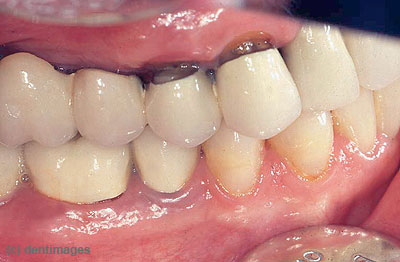 Zahnwurzelkaries, die bei älteren Patienten häufig vorkommt.