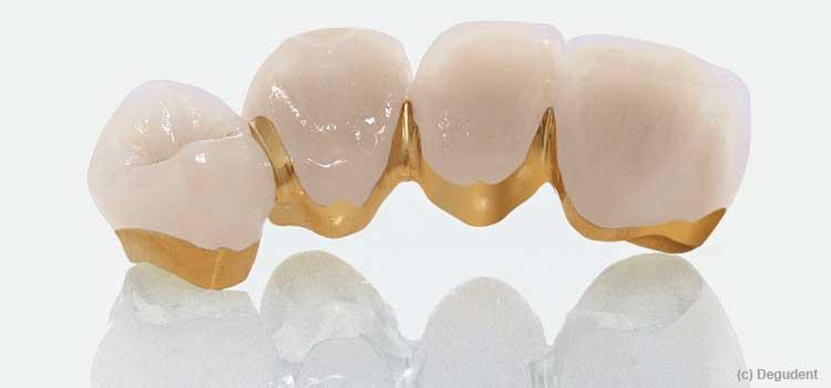 Zahnpflege bei Zahnersatz
