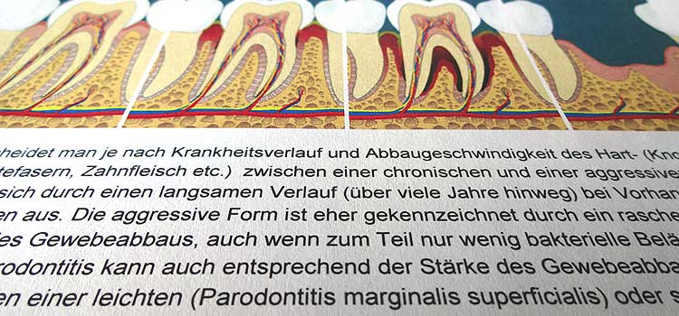 Parodontaler Screening Index (PSI)