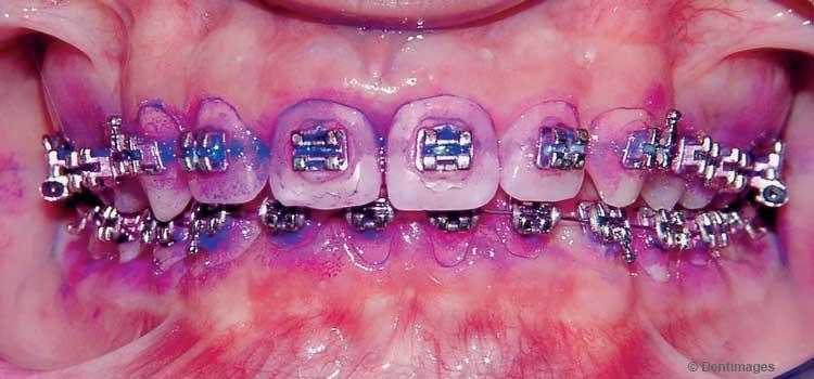 Zahnbeläge sichtbar machen
