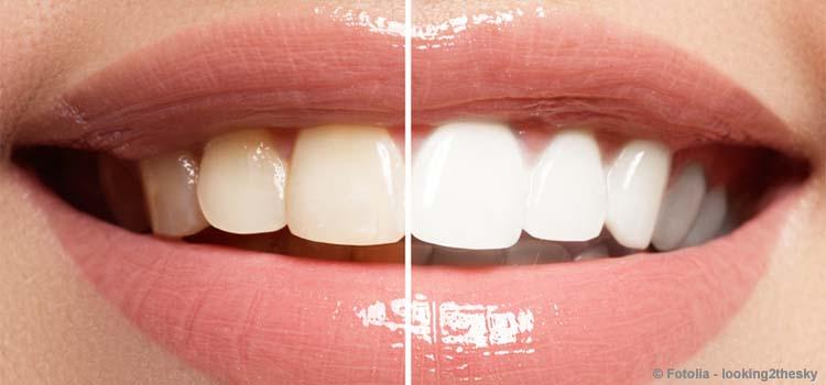 Zahnaufhellung liegt voll im Trend