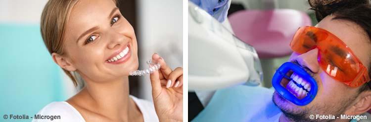 Laser Zahnaufhellung ist schlecht