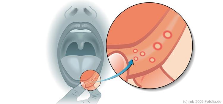 Aphten: wenn es im Mund schmerzt