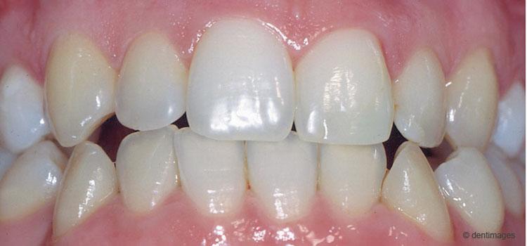 Zahnhalteapparat