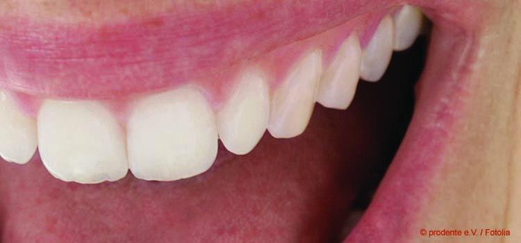 Parodontose, die schleichende Gefahr