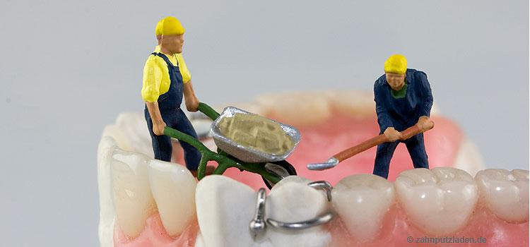 Zahnersatz: Regelversorgung weniger nachgefragt.