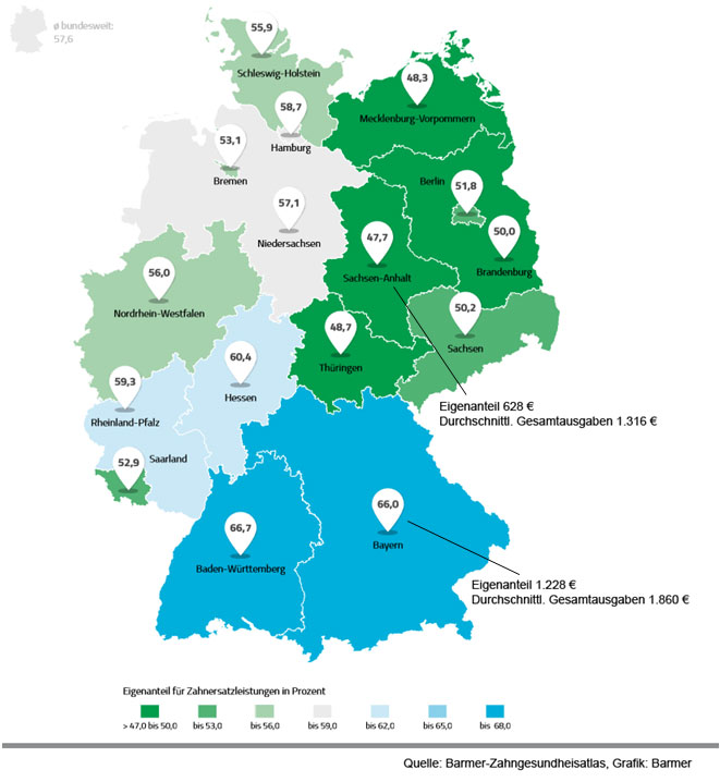 Der Zahngesundheitsatlas zeigt regionale Unterschiede bei den Eigenanteilen und den Gesamtkosten für Zahnersatz.