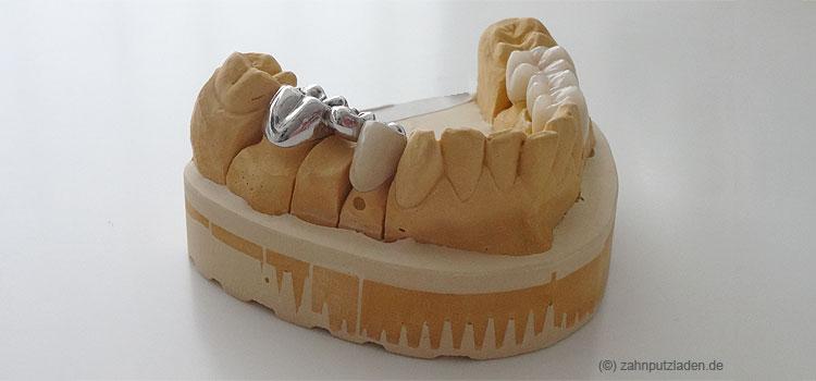 Dramatische regionale Unterschiede bei der zahnmedizinischen Versorgung deckt der am Donnerstag in Berlin vorgestellte Barmer-Zahngesundheitsatlas auf.