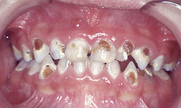 Kindliches Gebiss mit vielen kariösen Zähnen. Durch gute Mundhygiene und richtige Ernährung kann wirksam vorgebeugt werden.