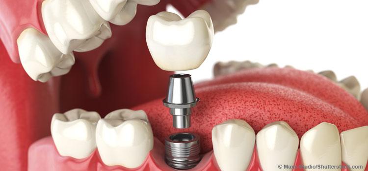 Eine Zahnlücke wird durch ein Implantat geschlossen