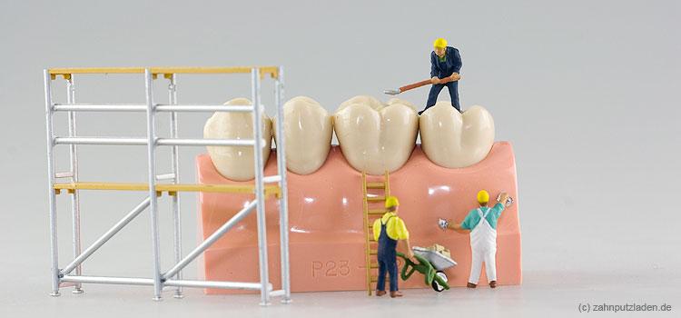 Zahnzusatzversicherung erst bei Problemen.