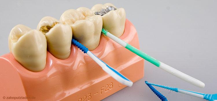Zahnzwischenraumpflege mit Gummipicks.