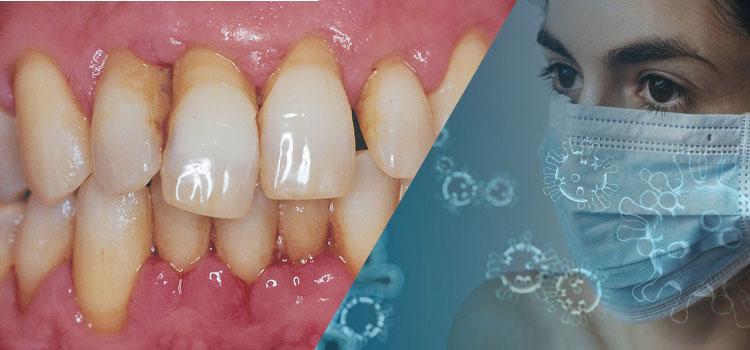 Parodontitis begünstigt schweren COVID-19-Verlauf.