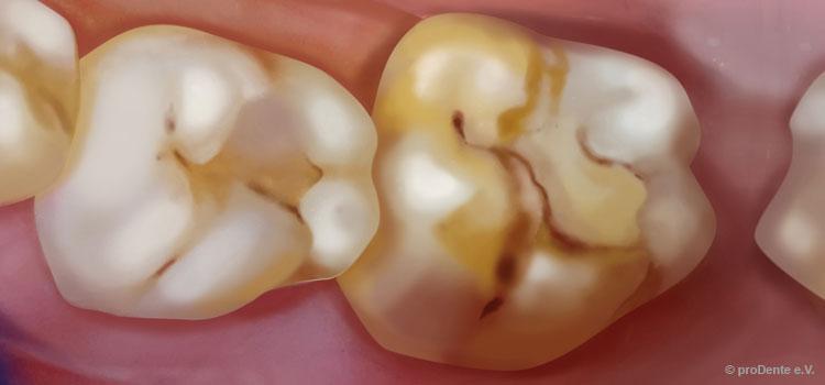 Kreidezähne und Antibiotikaa