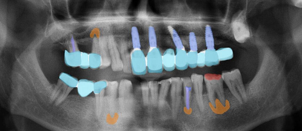 Farbliche Hervorhebung von Zahnfüllungen, Zahnersatz, Implantaten, Karies und Entzündungen mit Hilfe der Software dentalXrai. (https://www.dentalxr.ai/).