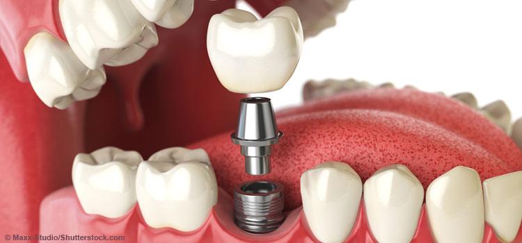 Zahnimplantat und Diabetiker